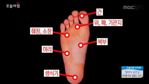 [2730회] 발바닥 굳은살 부위에 따라 질병도 다르다